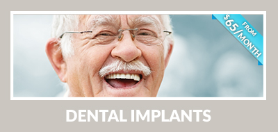 Dental Implants teaser