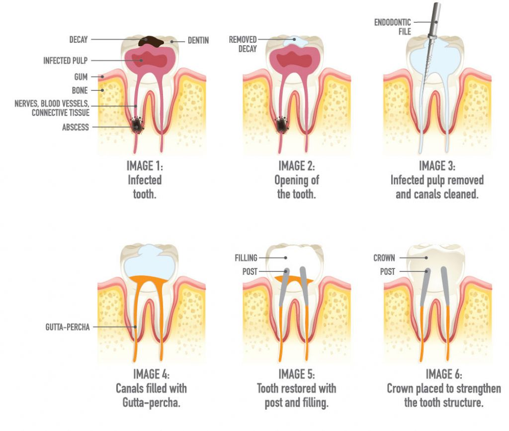 Endodontics Root Canal procedure