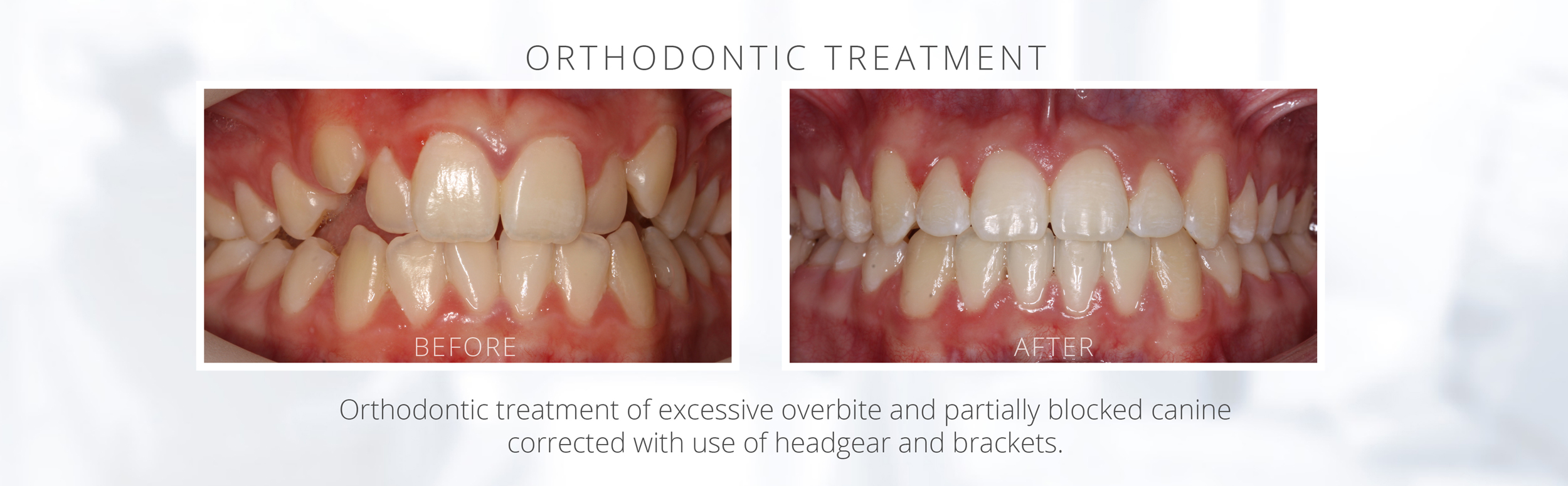 Orthodontic treatment of excessive overbite and partially blocked canine corrected with use of headgear and brackets