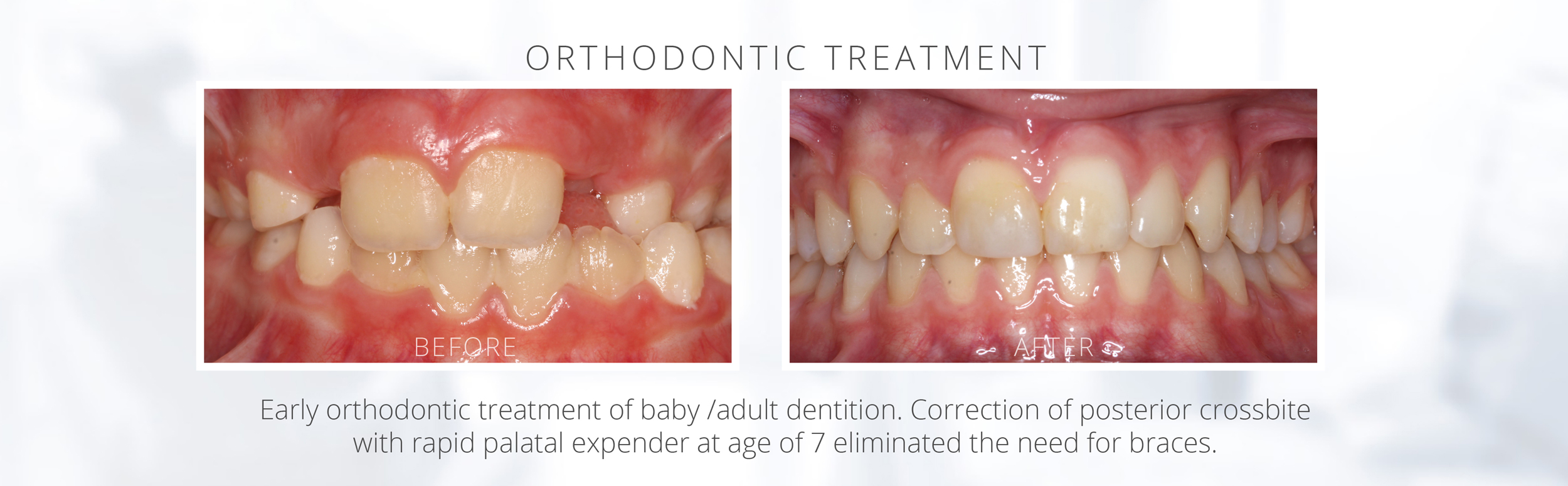 Early orthodontic treatment of baby /adult dentition. Correction of posterior crossbite with rapid palatal expender at age of 7 eliminated the need for braces.