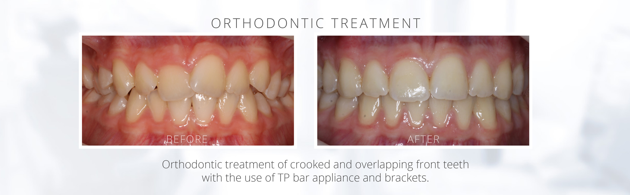 Orthodontic treatment of crooked and overlapping front teeth with the use of TP bar appliance and brackets