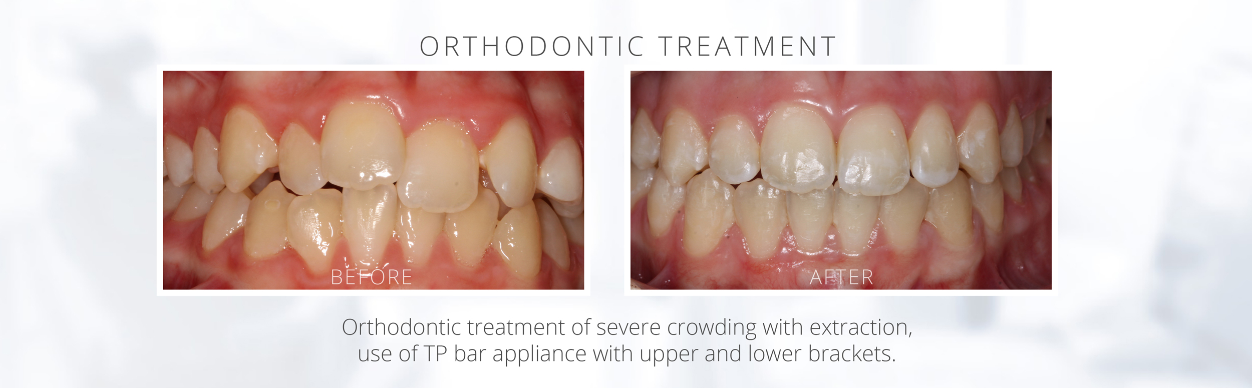 Orthodontic treatment of severe crowding with extraction, use of TP bar appliance with upper and lower brackets