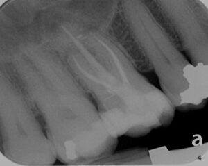 root canal post operation